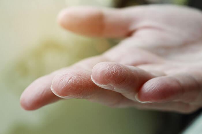 ひび割れ、赤み、カサつき......手が乾燥する原因